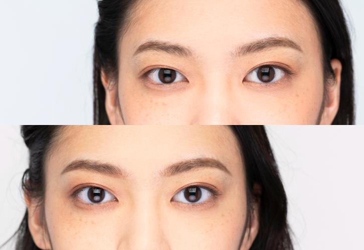 だけ 小さい 片目 左右で見える大きさが違う|大宮の眼科|はんがい眼科